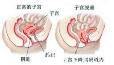 正常的子宫和子宫下垂示意图