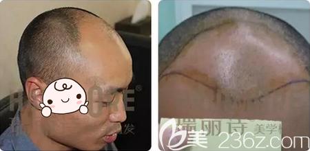 北京瑞丽诗植发门诊部王禹术前照片1