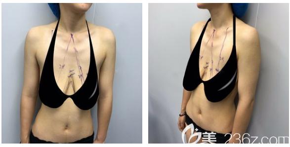 深圳南雅医疗美容整形门诊部姚成红术前照片1