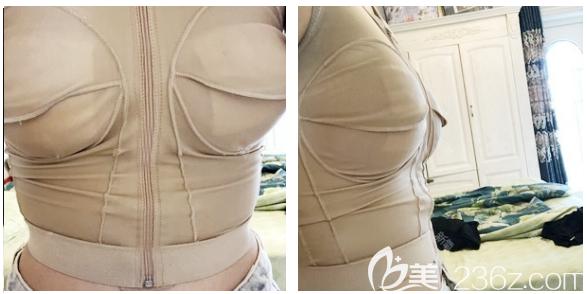 深圳南雅花苞精细雕刻手术真实案例一个月效果图