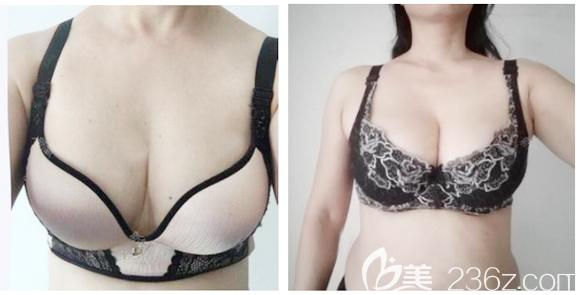 深圳南雅姚成红胸部奥美定取出两个月效果图