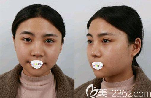 天津博莱美刘旺瘦脸案例术后10天