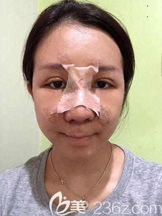韩国艾恩眼部鼻部术后当天
