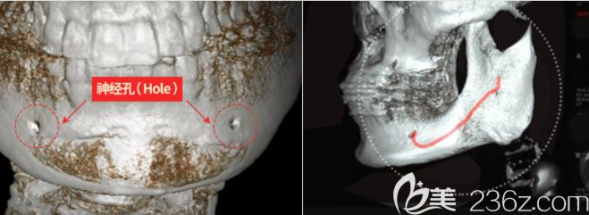 韩国id下颌角整形把控面部神经线示意图
