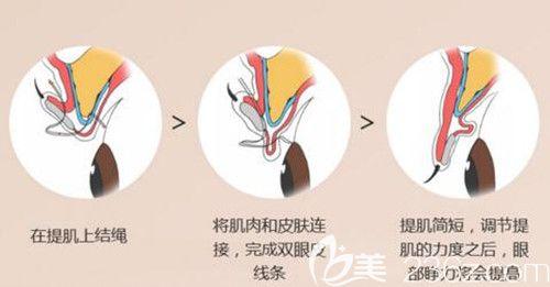 韩国艾恩非切开手术法眼型矫正术示意图