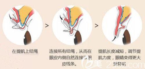 韩国艾恩切开法眼型矫正术示意图