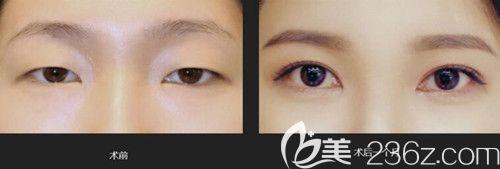 韩国艾恩真人眼型矫正术前术后对比照