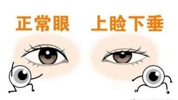 正常眼型和上睑下垂眼型的对比照