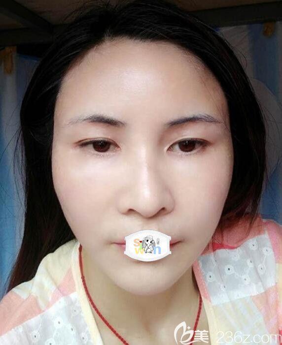孝感天妃医疗整形美容门诊部柳肖术后照片1
