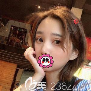 杭州格莱美张小红恢复一个月双眼皮案例