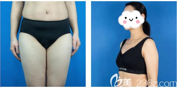 深圳yestar艺星医疗美容整形医院常德成术前照片1
