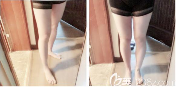 说说我面诊深圳多家医院后选择深圳yestar艺星整形常德成做大腿吸脂的亲身经历和感受