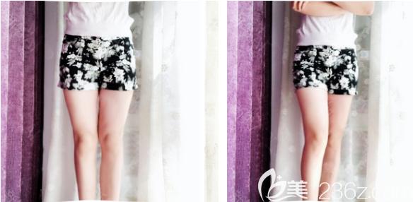 深圳yestar艺星整形常德成做的大腿吸脂案例