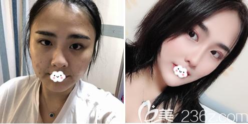 珠海九龙医院整形美容科张成春做的隆鼻案例