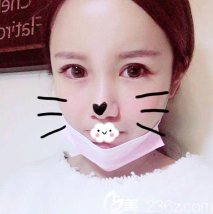 说说我在深圳众多整形医院中选择深圳yestar艺星整形张华彬做面部埋线提升的原因