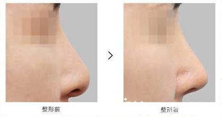 韩国原辰鼻头变形修复真人案例