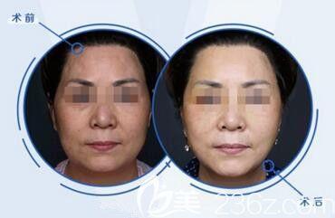 韩国profile普罗菲耳朴明旭院长小切口三重提升真人前后对比效果照