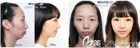 准新娘用她在韩国菲斯莱茵做凸嘴矫正手术的案例来告诉你这个医院怎么样?