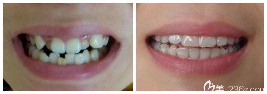 佳美口腔牙齿矫正前后对比图