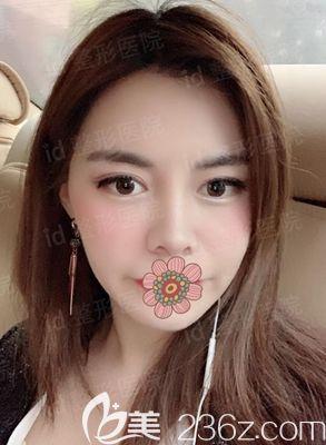 分享我找韩国id李知赫院长做轮廓四件套1-12个月的恢复照片 效果如何你们看