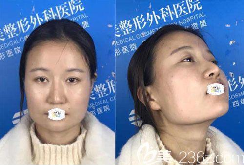 武汉华美整形外科医院付国友术前照片1