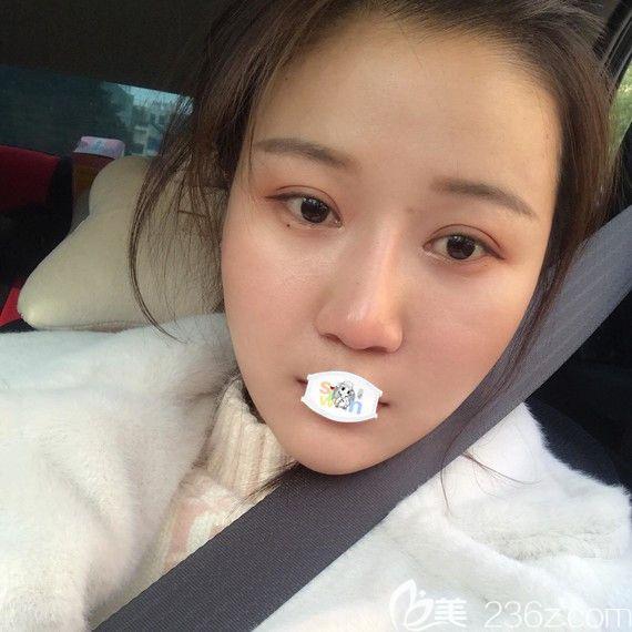 武汉华美付国友磨骨去下颌角术后15天恢复图