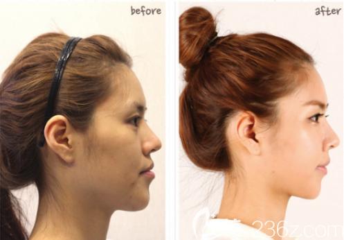 自从在韩国菲斯莱茵做了智能双鄂手术+V脸雕刻术之后变美变童颜就是这么简单