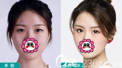 全新感受一下长沙爱思特灵韵大眼术5.0真人案例,真正打造闭眼无痕天生的双眼皮!