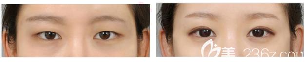 韩国id黄仁锡双眼皮+眼部提肌+去脂肪案例