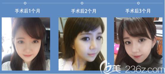 在韩国faceline做了全身吸脂和面部轮廓后我才相信他们医院没有换手和影子医生这么一说