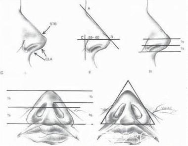 韩国清潭FIRST体旋翼鼻修复拯救做失败鼻子