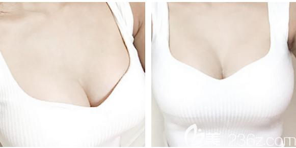 刚花2万多元找广州曙光医院刘杰伟做了自体脂肪丰胸分享一份隆胸费用价格表