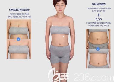 用我的案例告诉你韩国菲斯莱茵医院不止轮廓手术做得好,全身吸脂也挺好的