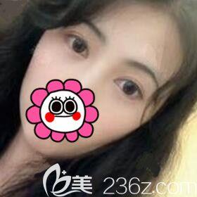 找衡阳雅美医疗美容医院廖伟龙做双眼皮整形术后3个月恢复效果图分享!