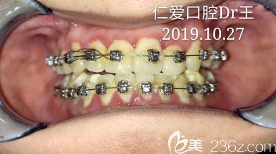 在武汉仁爱口腔做牙性反颌矫正4个多月,我的地包天正畸前后对比变化就如此可喜.....