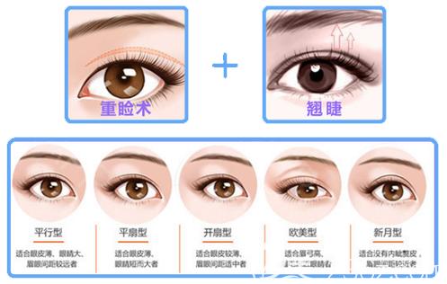 广州海峡闫伦医生双眼皮手术特点