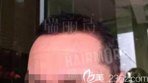 武汉瑞丽诗植发医疗美容门诊部孙永刚术后照片1