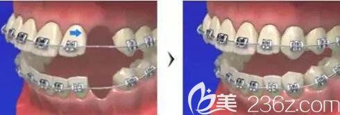 来评测下龅牙嘴凸小姐姐在北京圣贝口腔做的金属自锁矫正效果好不好