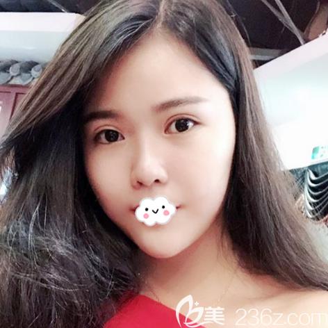 广州紫馨医疗美容整形门诊部谷琪术后照片1