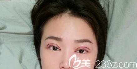 双眼皮开眼角术后第二天肿胀情况