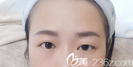 四川友谊医院整形美容科贾敏术前照片1