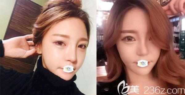 趁韩国原辰整形医院价格表有优惠活动做眼鼻胸+轮廓三件套后感慨整形的重要性!