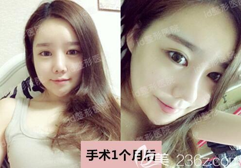 韩国id整形权宰贤颧骨V-脸崔在镐耳软骨复合隆鼻黄仁锡吸脂后,是美女的既视感了