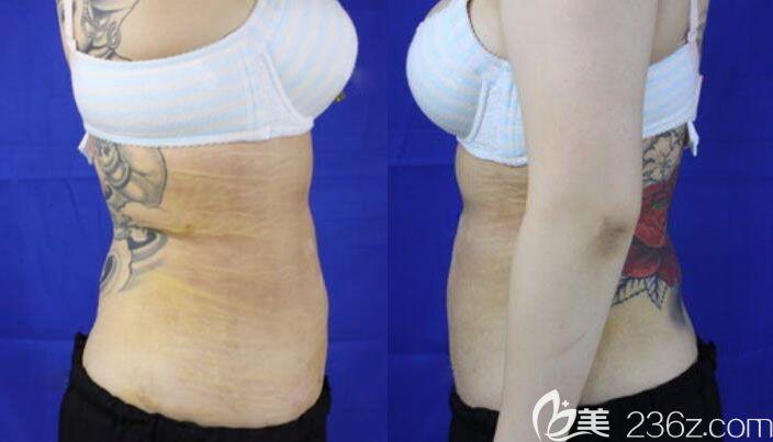 天津联合丽格王文凯腰腹吸脂术后10天恢复照片