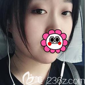 北京欧扬医疗美容门诊部胡智鹏术前照片1