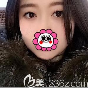 在北京欧扬做全切双眼皮第40天样子