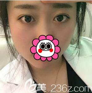 北京欧扬医疗美容门诊部胡智鹏术后照片1