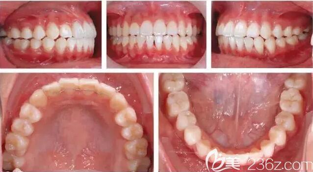 惠州致美齿科牙齿矫正真人案例