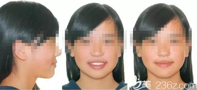 惠州致美口腔医院刘宏平术后照片1