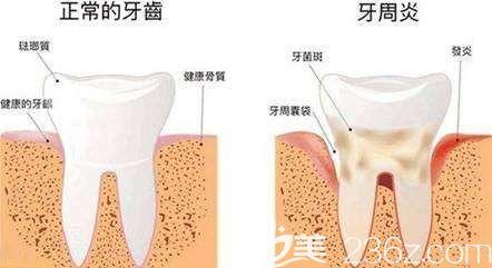 牙周炎会导致持续性口臭